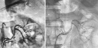Hình 2. Hình ảnh chụp mạch và đặt stent động mạch thận trái trên