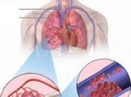Huyết khối gây tắc động mạch phổi (Ảnh minh họa)