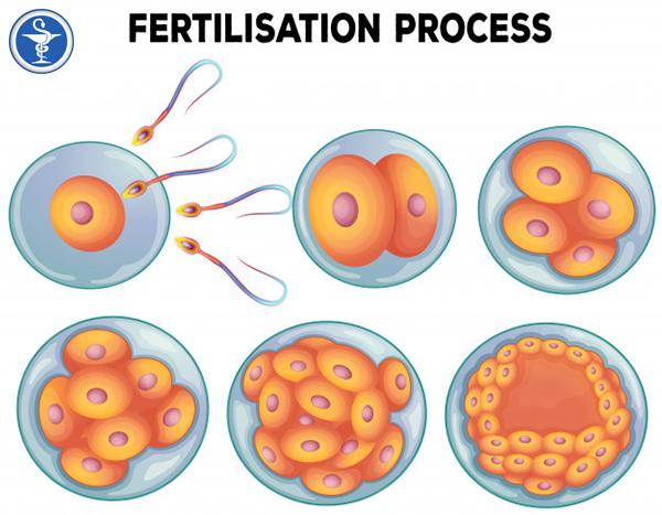 Cào nội mạc tử cung trước khi thụ tinh ống nghiệm không làm tăng tỷ lệ có thai