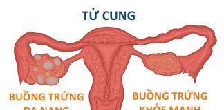 Hội chứng buồng trứng đa nang và những điều cần biết