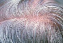 10 nguyên nhân và thói quen khiến tóc bạc sớm
