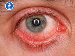 Bệnh viêm kết mạc: Nguyên nhân, triệu chứng và cách điều trị