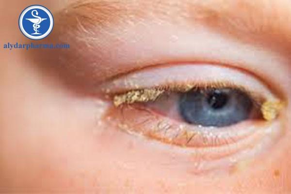 Có nhiều nguyên nhân dẫn đến bệnh viêm kết mạc