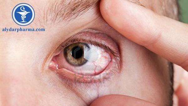 Bệnh đau mắt hột là gì?