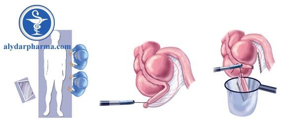 Sau 2 – 3 tuần mổ, vết mổ hoàn toàn lành lặn, bệnh nhân có thể quay lại sinh hoạt tình dục.