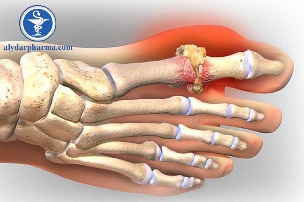 Công dụng điều trị bệnh của thuốc piroxicam