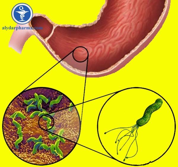 Vi khuẩn H. Pylori là một trong những nguyên nhân gây viêm loét dạ dày