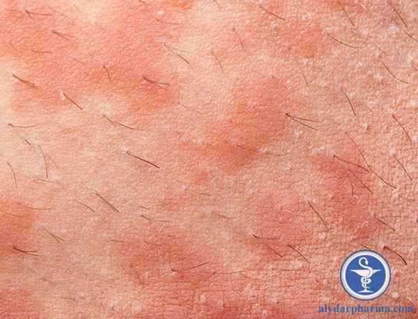 Chàm nang lông chỉ phát sinh triệu chứng khu trú ở xung quanh nang lông