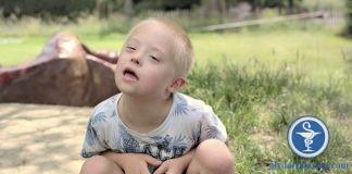 Hội chứng Down (ảnh minh họa một trẻ mắc hội chứng Down)