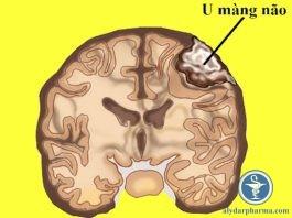 U màng não: phân loại, chẩn đoán và thái độ điều trị