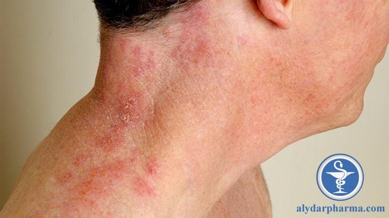 Bệnh zona thần kinh được gây nên bởi Virus varicella-zoster