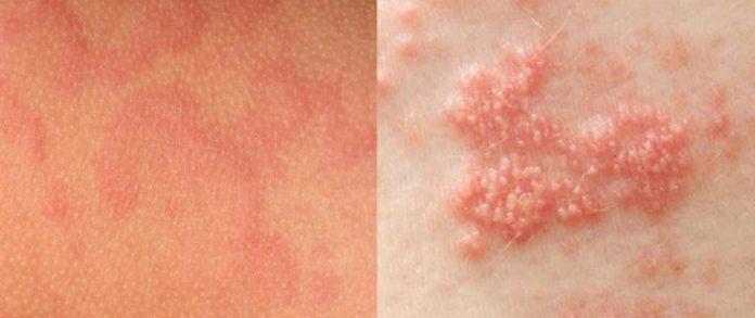 Biểu hiện trên da của bệnh zona thần kinh và giời leo khá giống nhau nên rất dễ nhầm lẫn