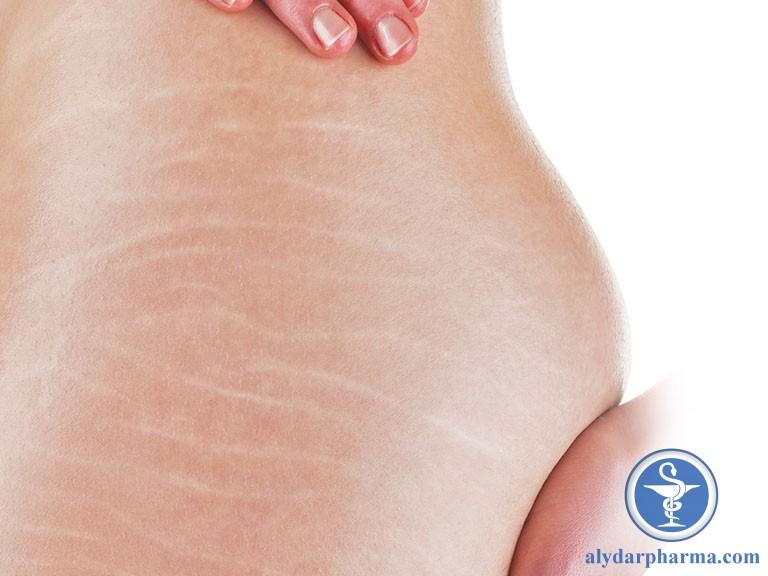 Corticoid làm teo collagen, khiến da giảm độ đàn hồi và có nguy cơ xuất hiện vết rạn