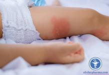 Làm thế nào để phân biệt các bệnh vảy nến, chàm và viêm da cơ địa?