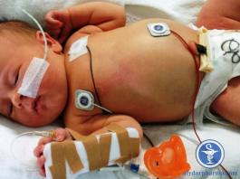 Phòng ngừa Streptococcus nhóm B khởi phát sớm ở trẻ sơ sinh