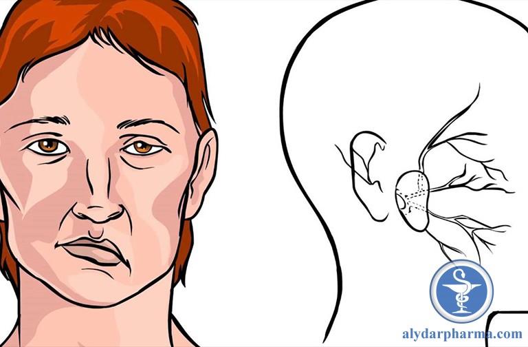 Liệt thần kinh là biến chứng có thể gặp khi mắc bệnh viêm họng giả mạc