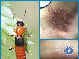 Cần làm gì khi tiếp xúc với kiến ba khoang